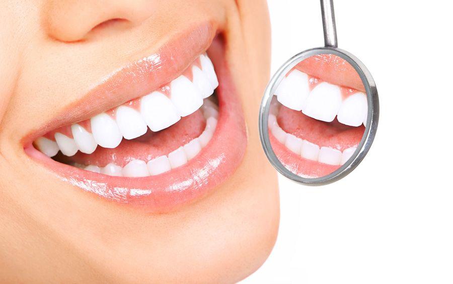 Lente de contato dental deixa o sorriso branco e correto